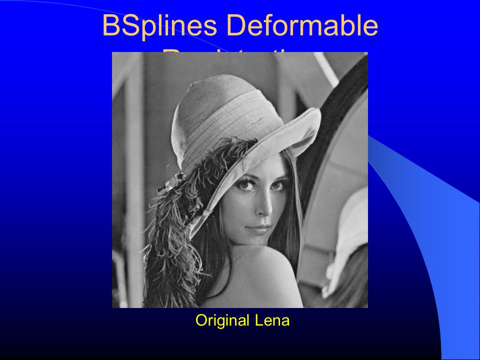 BSplines Deformable Registration