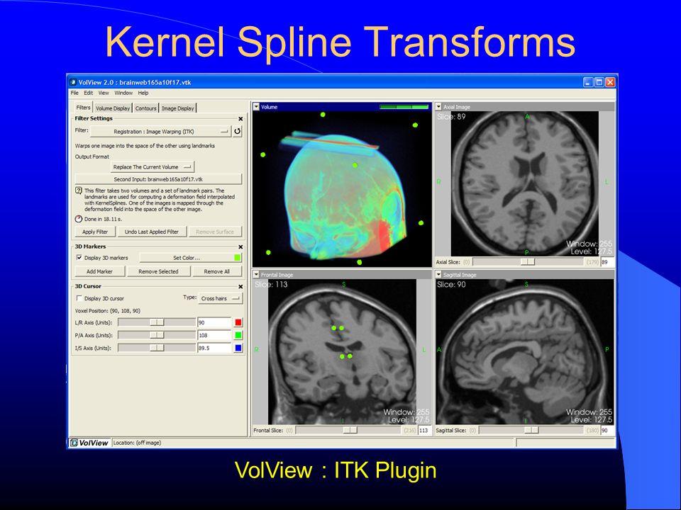 Kernel Spline Transforms
