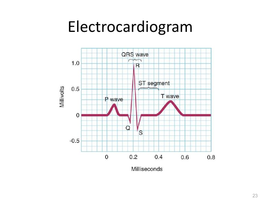 an introduction to the work and effects of electrocardiograms An analysis of abnormal electrocardiograms in an analysis of abnormal electrocardiograms may have a negative effect on their health.