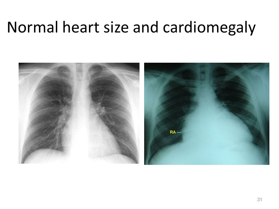 Introduction – page 398 Cardiovascular System: delivers oxygen and ...