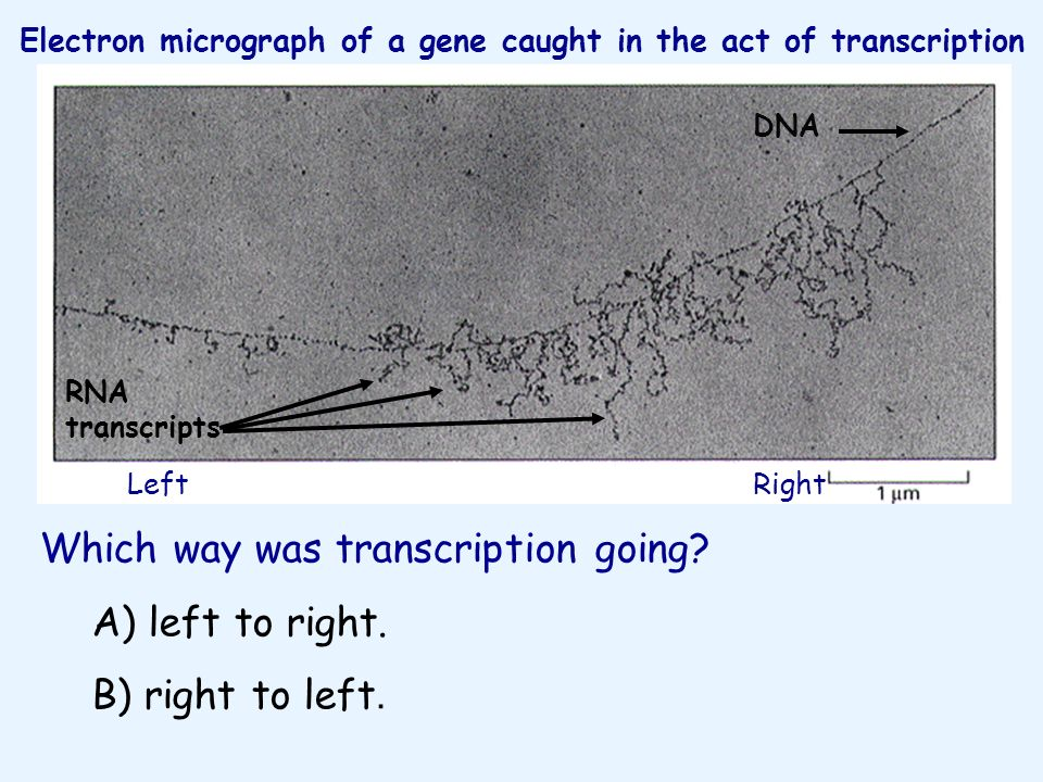 Electron micrograph of a gene caught in the act of transcription