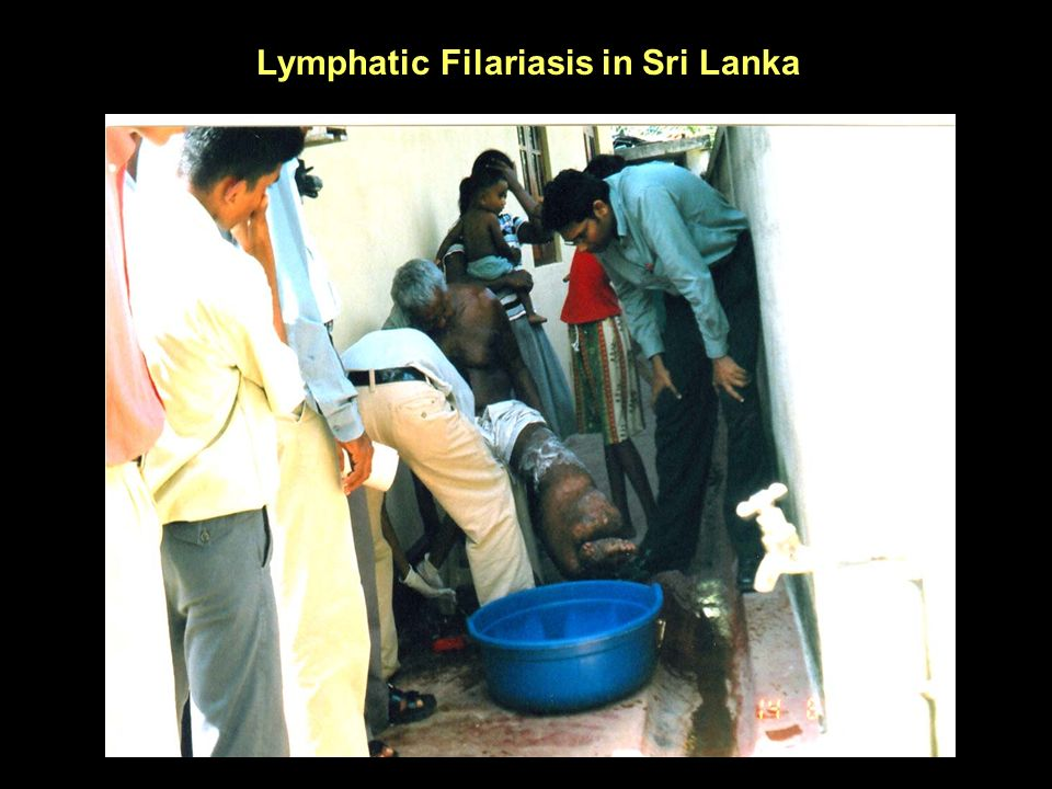Lymphatic Filariasis in Sri Lanka