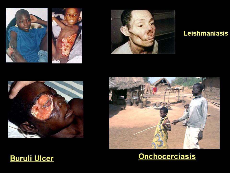 Leishmaniasis Onchocerciasis Buruli Ulcer