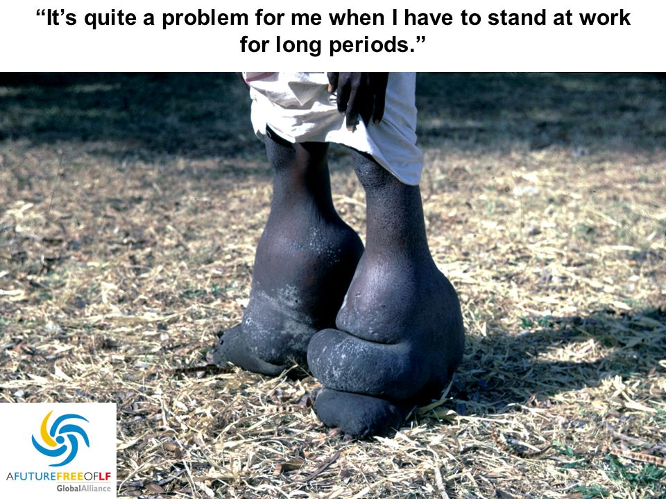 It's quite a problem for me when I have to stand at work for long periods.
