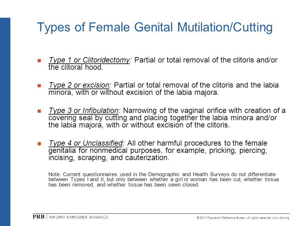 Types of Female Genital Mutilation/Cutting