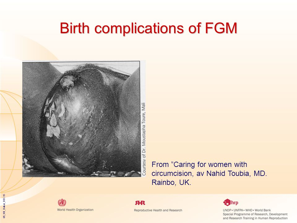 Birth complications of FGM