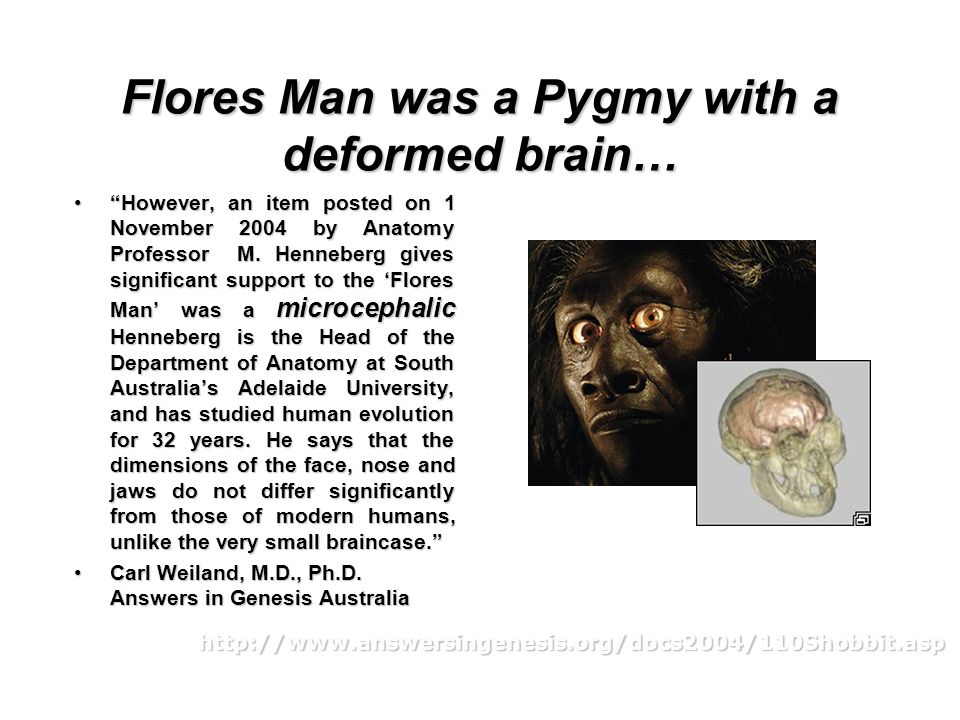 Flores Man was a Pygmy with a deformed brain…