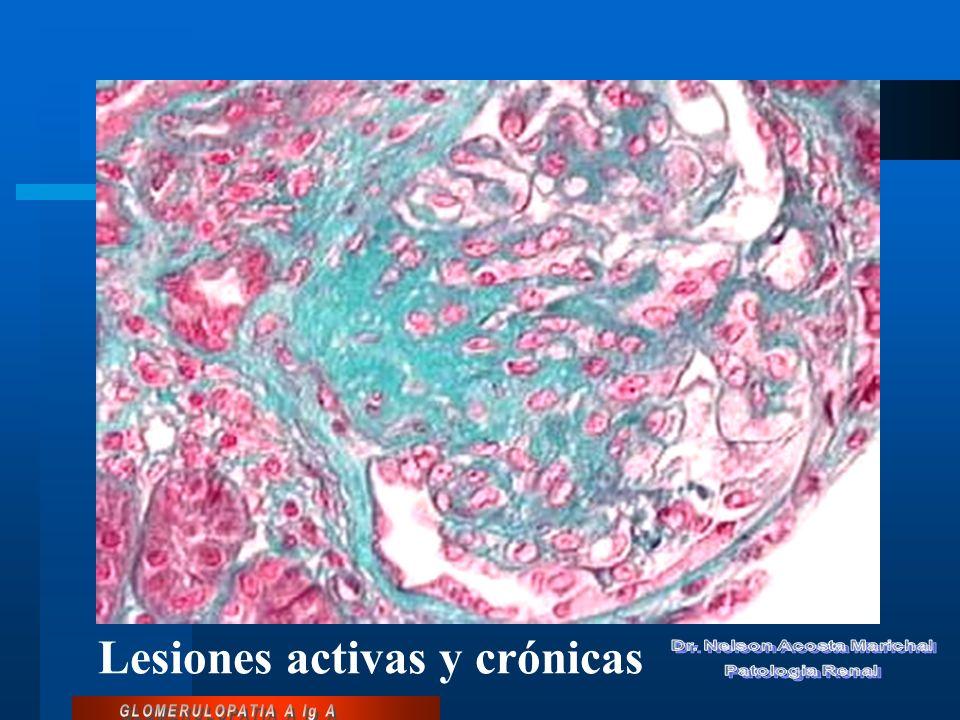 Lesiones activas y crónicas