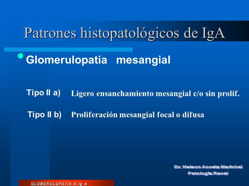 Patrones histopatológicos de IgA