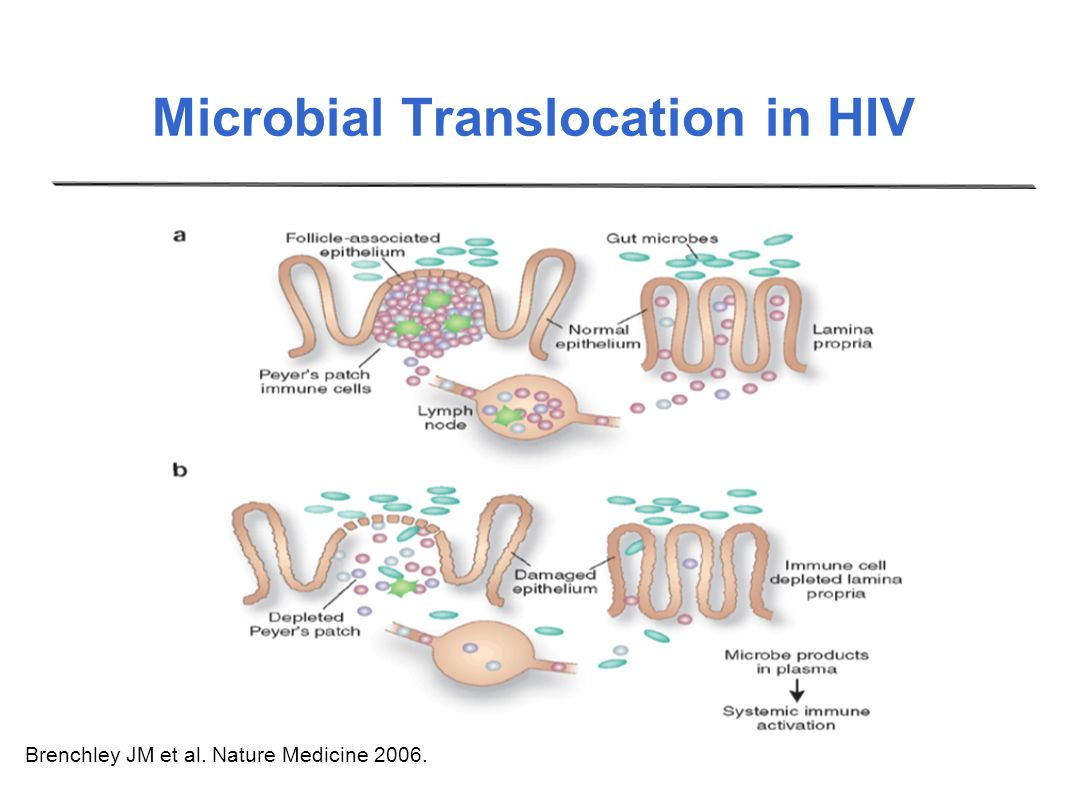 Microbial Translocation in HIV