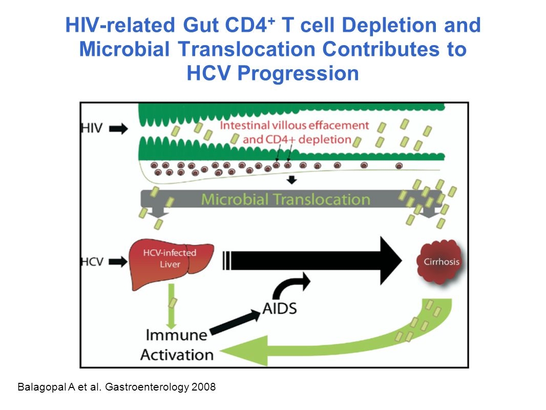 HIV-related Gut CD4+ T cell Depletion and Microbial Translocation Contributes to HCV Progression