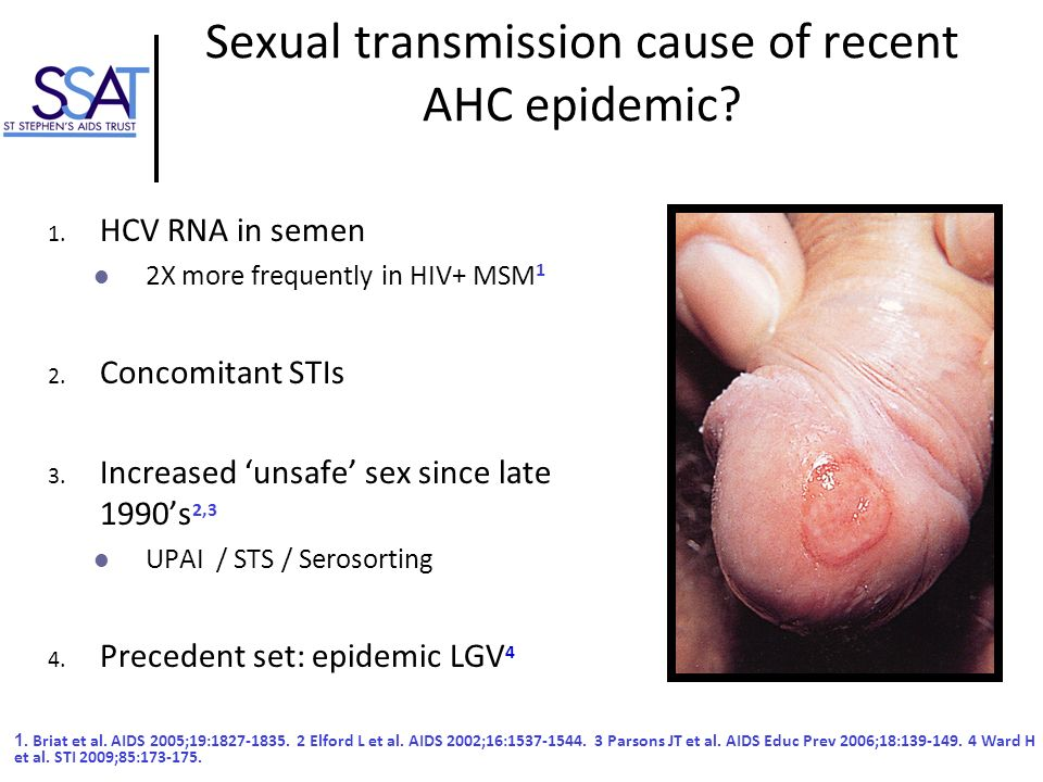 Sexual transmission cause of recent AHC epidemic