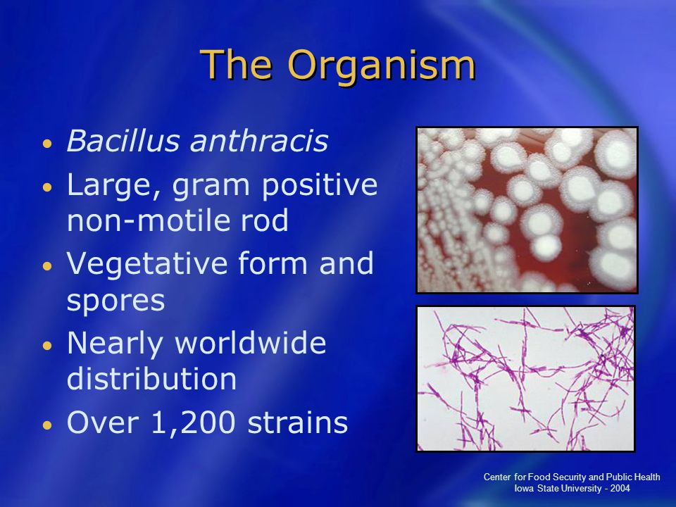 The Organism Bacillus anthracis Large, gram positive non-motile rod