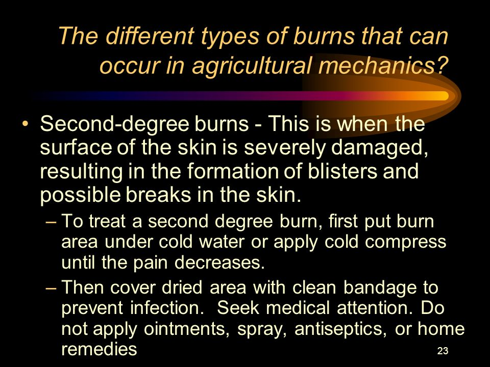 The different types of burns that can occur in agricultural mechanics