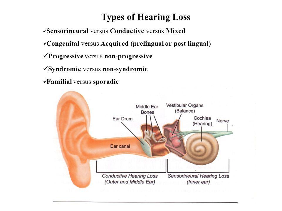 Types of Hearing Loss Sensorineural versus Conductive versus Mixed. Congenital versus Acquired (prelingual or post lingual)