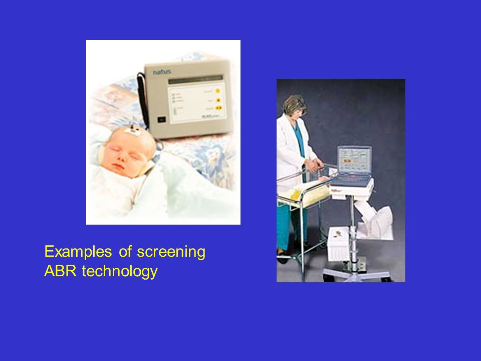 Examples of screening ABR technology