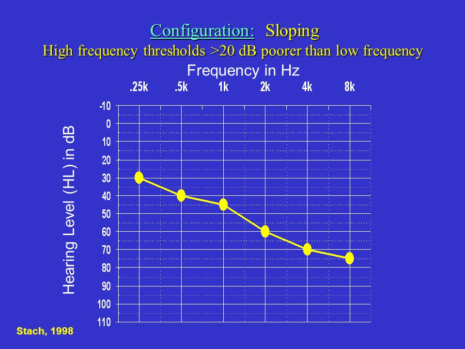 Hearing Level (HL) in dB