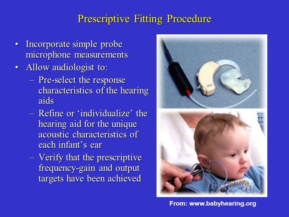 Prescriptive Fitting Procedure