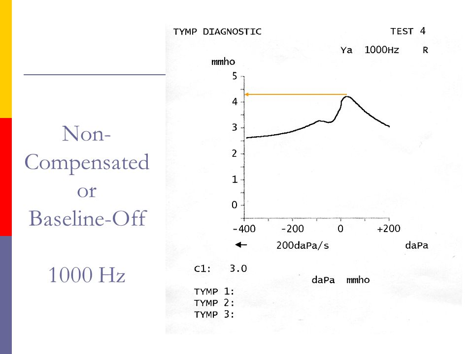 Non-Compensated or Baseline-Off 1000 Hz