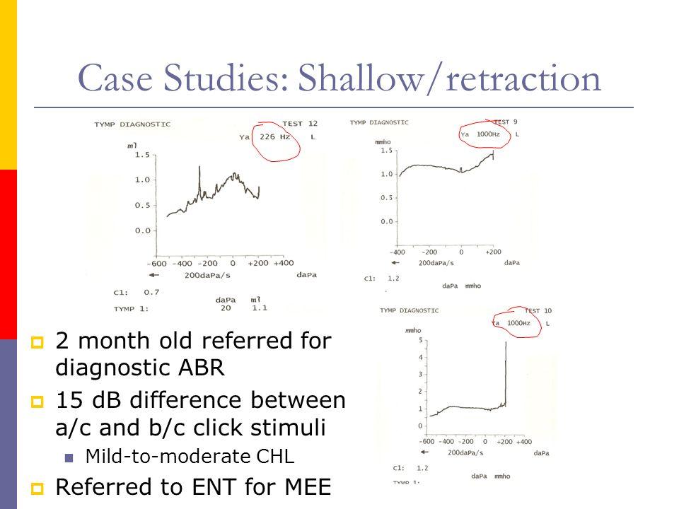Case Studies: Shallow/retraction