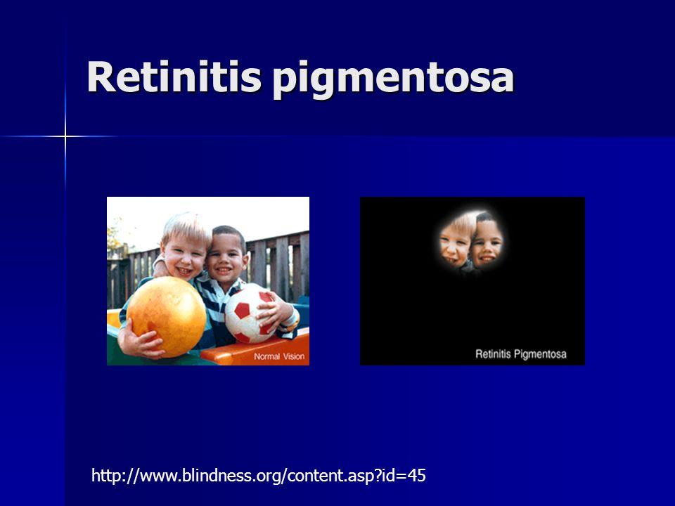 Retinitis pigmentosa http://www.blindness.org/content.asp id=45