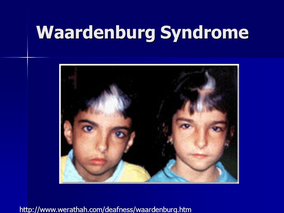 Waardenburg Syndrome http://www.werathah.com/deafness/waardenburg.htm