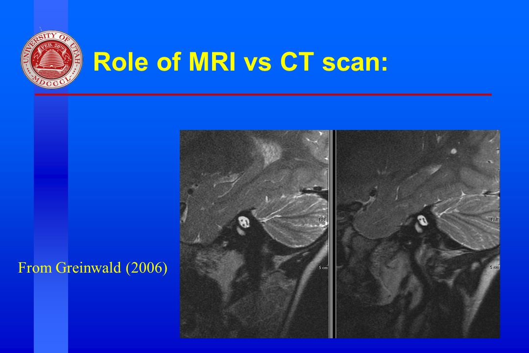 Role of MRI vs CT scan: From Greinwald (2006)