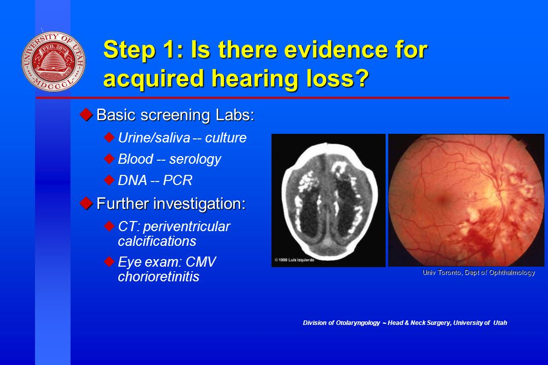 Step 1: Is there evidence for acquired hearing loss