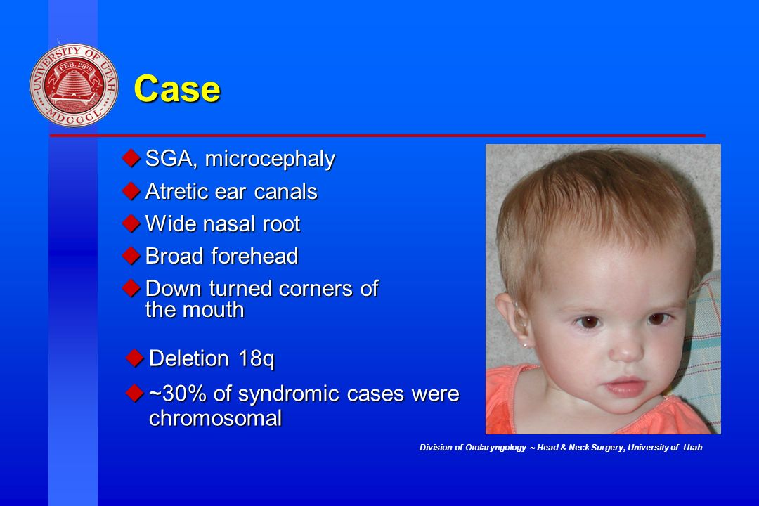 Case SGA, microcephaly Atretic ear canals Wide nasal root