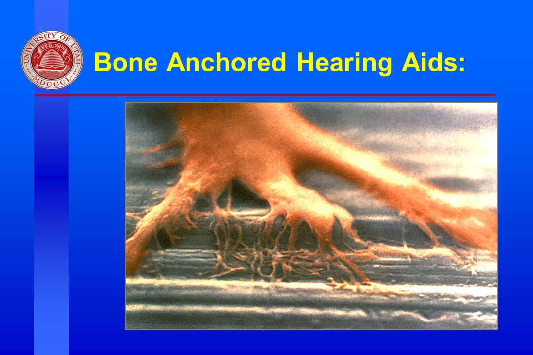 Bone Anchored Hearing Aids:
