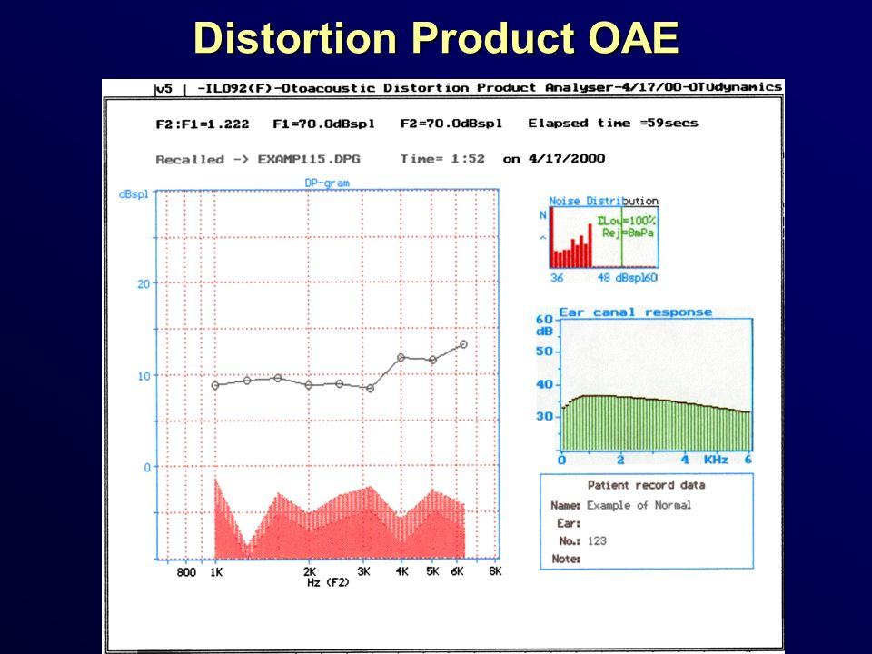 Distortion Product OAE