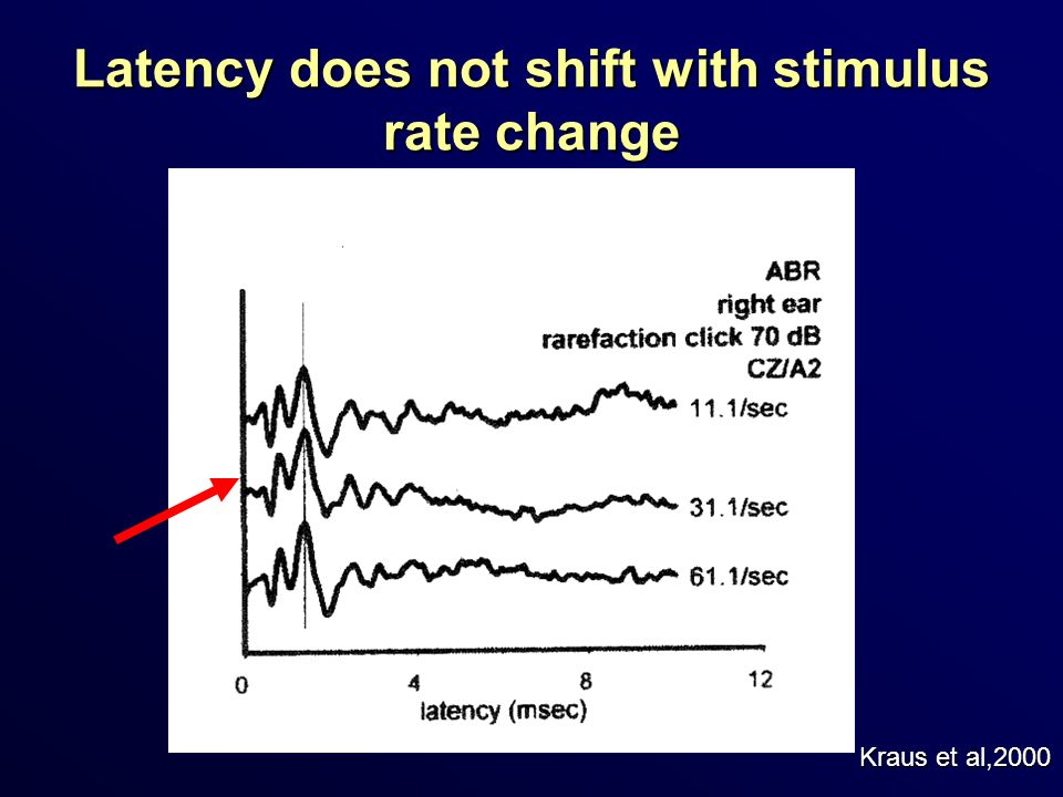 Latency does not shift with stimulus rate change