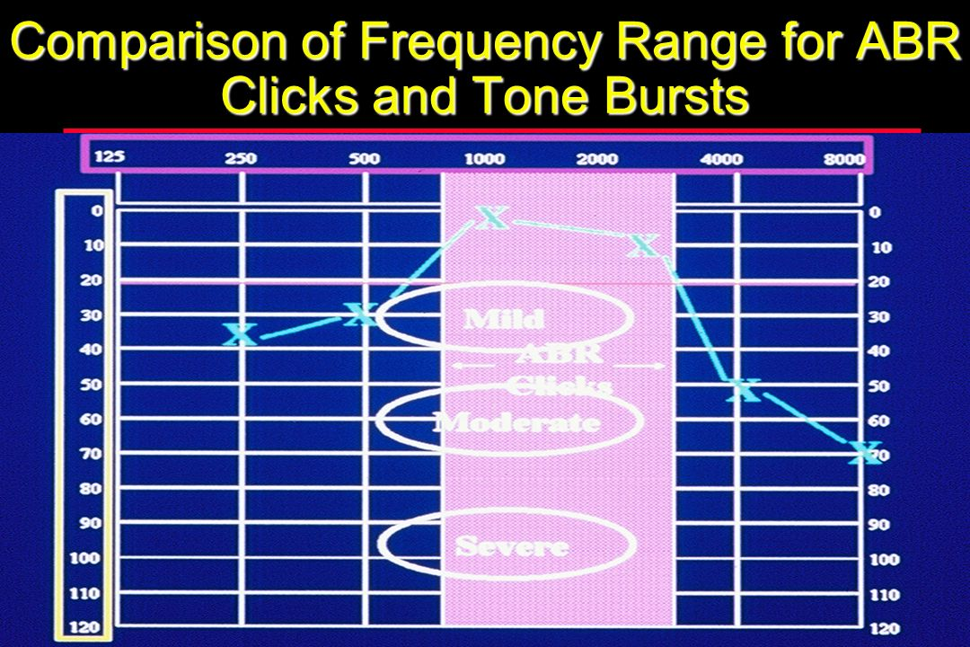 Comparison of Frequency Range for ABR Clicks and Tone Bursts