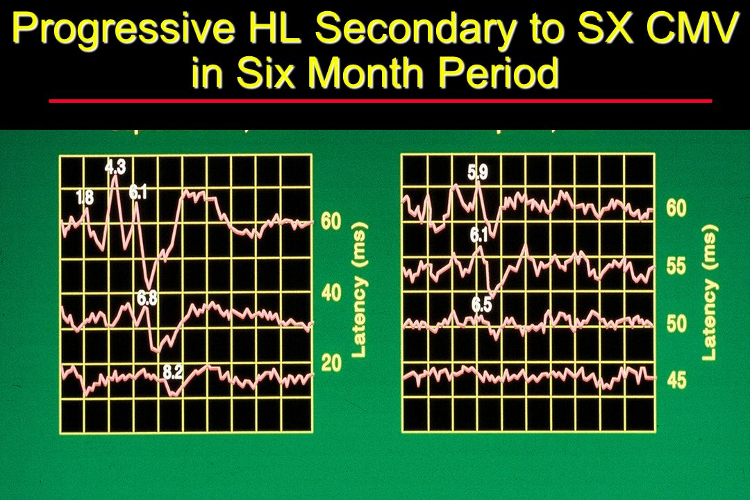 Progressive HL Secondary to SX CMV in Six Month Period