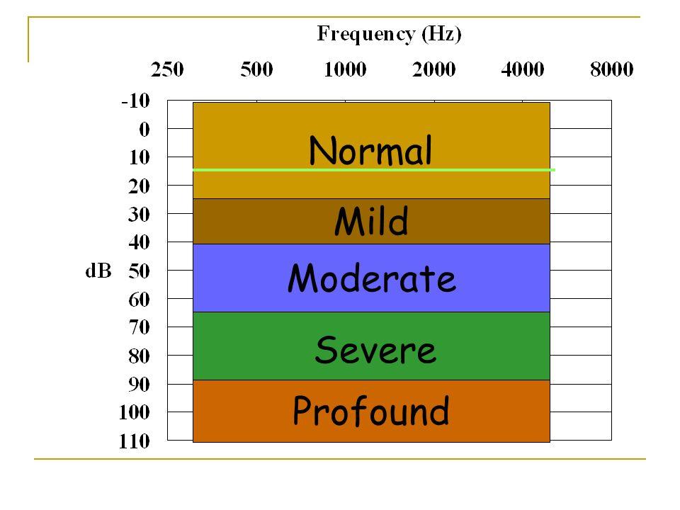 Normal Mild Moderate Severe Profound