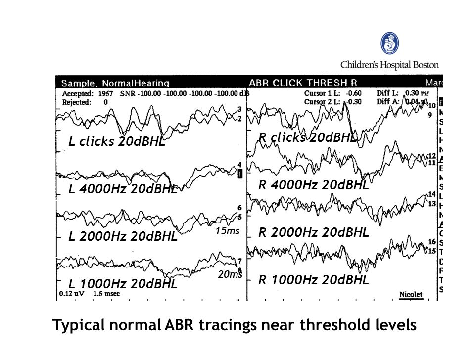 Typical normal ABR tracings near threshold levels