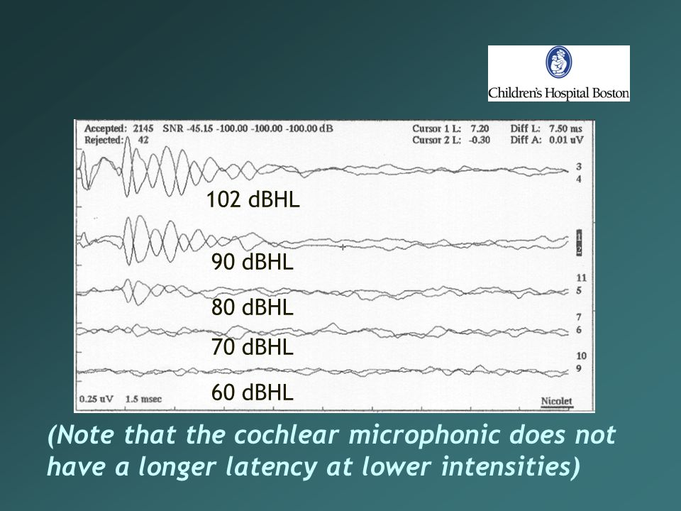 (Note that the cochlear microphonic does not