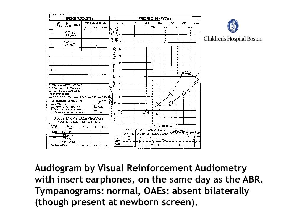 Audiogram by Visual Reinforcement Audiometry
