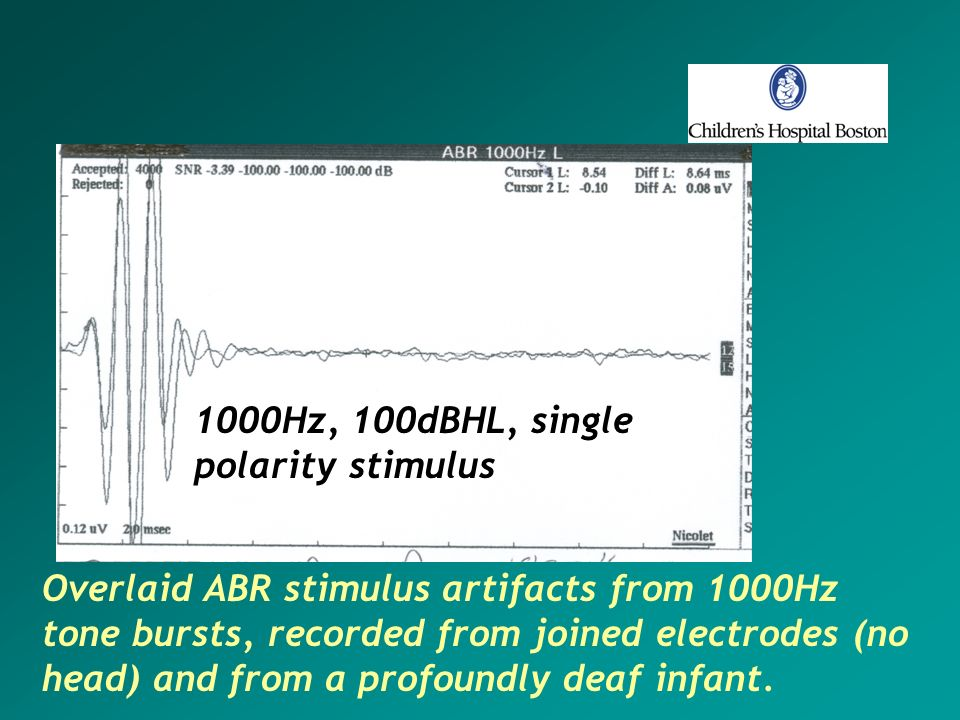 1000Hz, 100dBHL, singlepolarity stimulus.