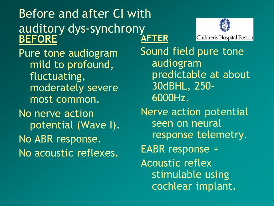 Before and after CI with auditory dys-synchrony