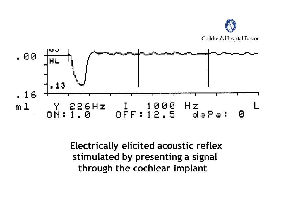 Electrically elicited acoustic reflex