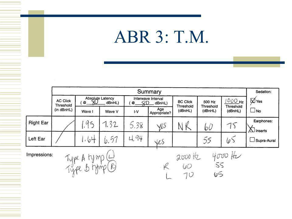 ABR 3: T.M.