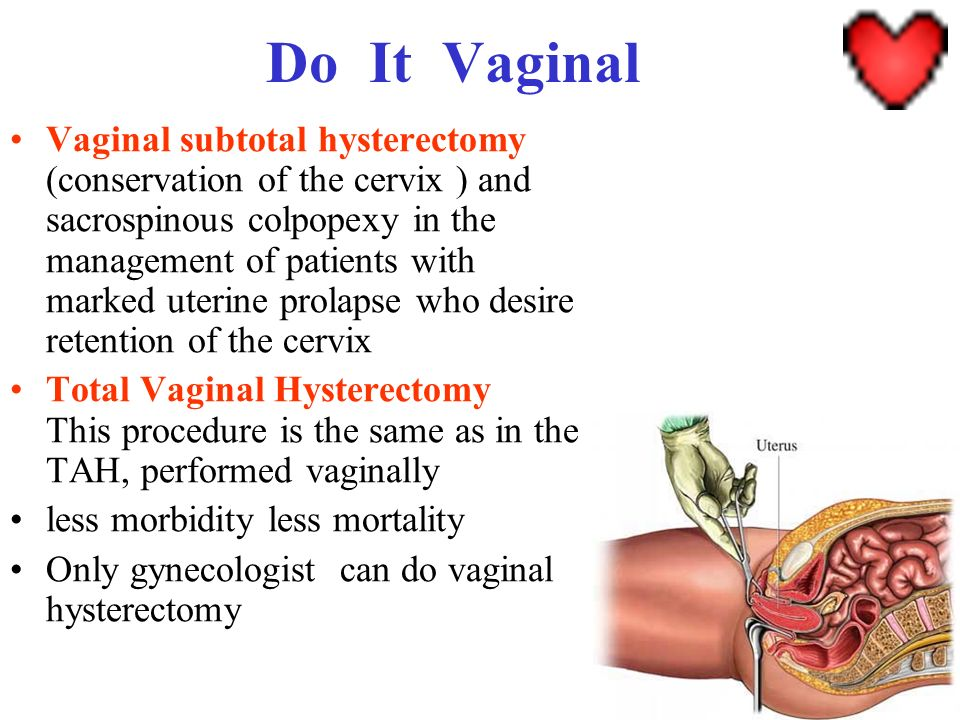 Do It Vaginal