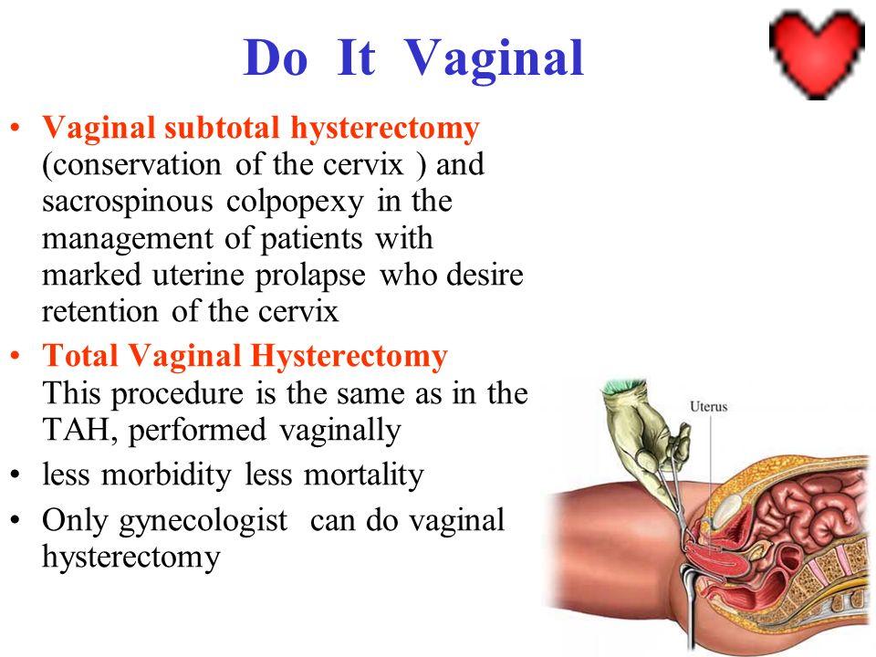 Do It Vaginal