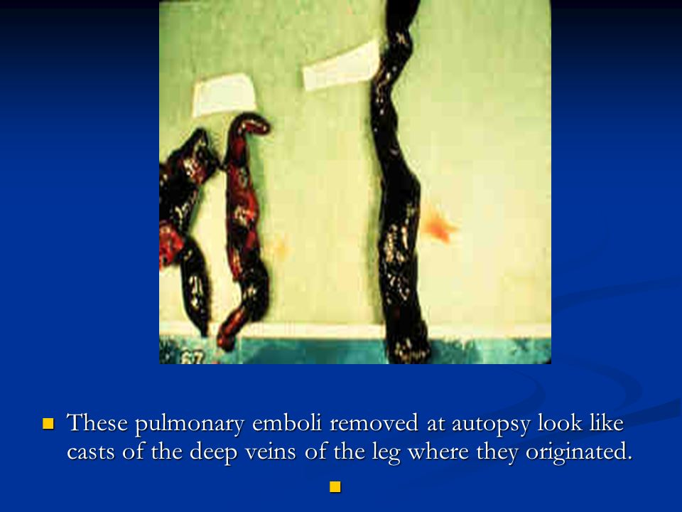 These pulmonary emboli removed at autopsy look like casts of the deep veins of the leg where they originated.