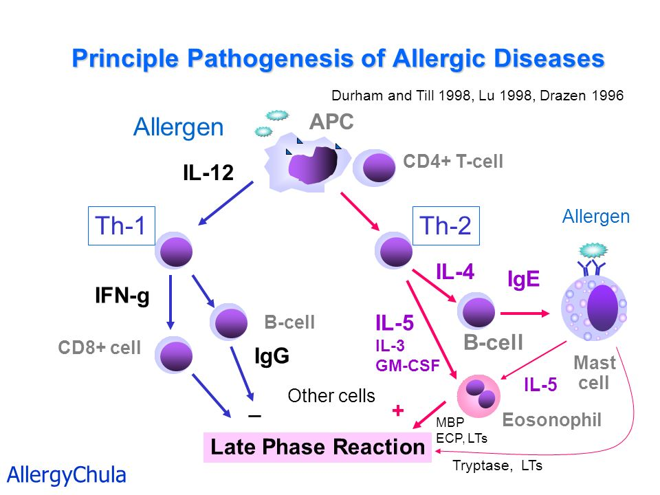 Principle Pathogenesis of Allergic Diseases