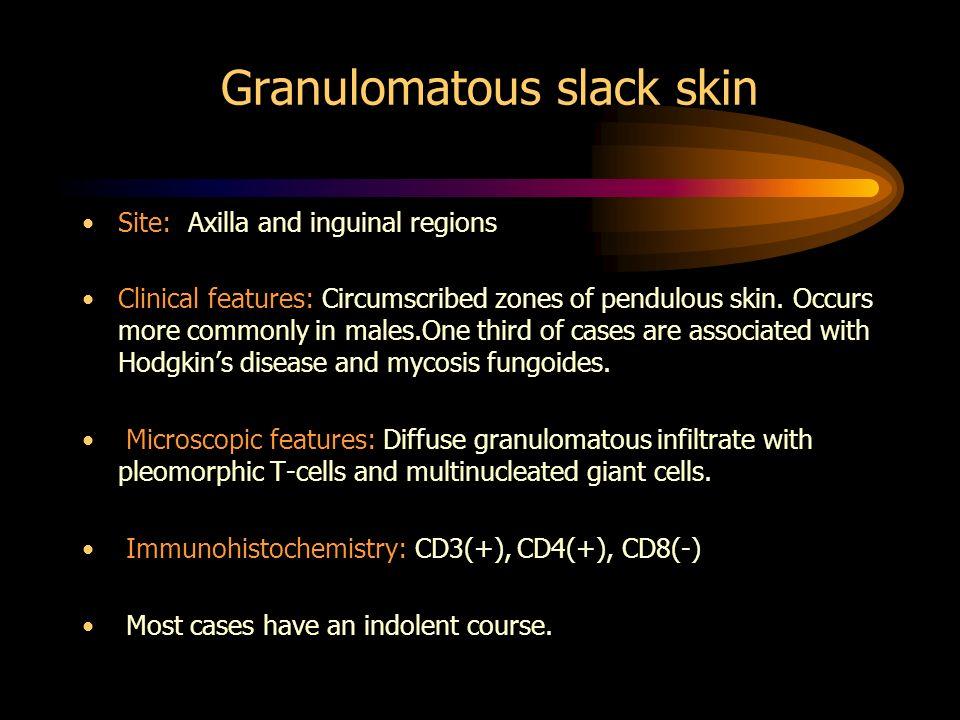 Granulomatous slack skin