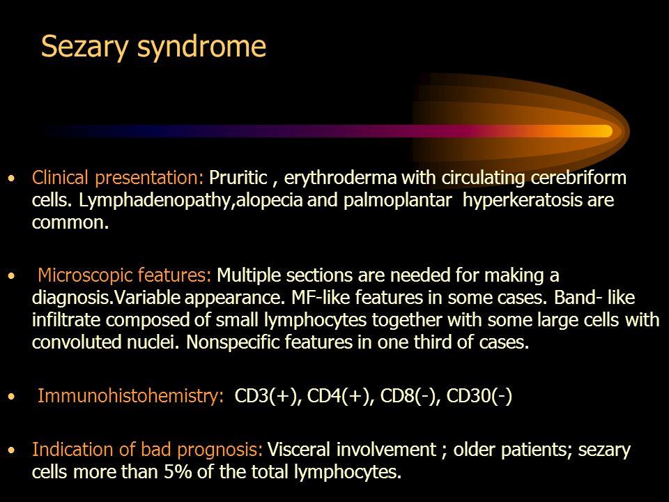 Sezary syndrome