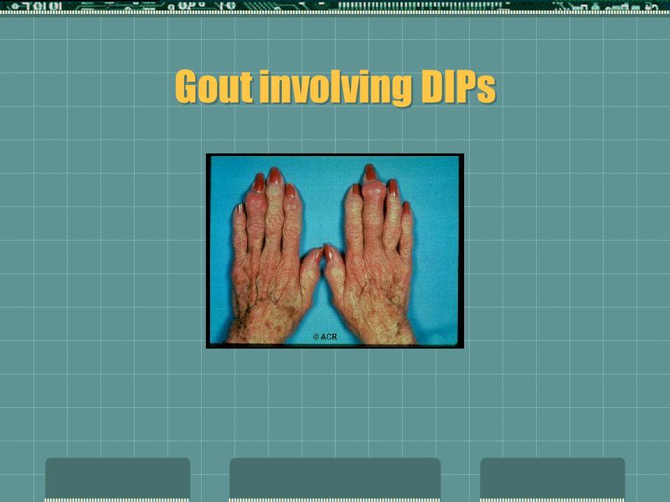 Gout involving DIPs
