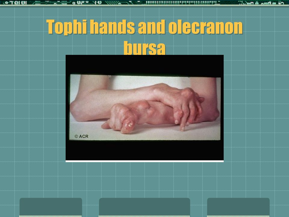 Tophi hands and olecranon bursa